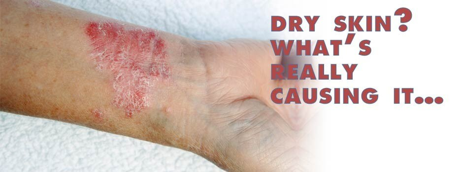 Dry skin? What's really causing it…